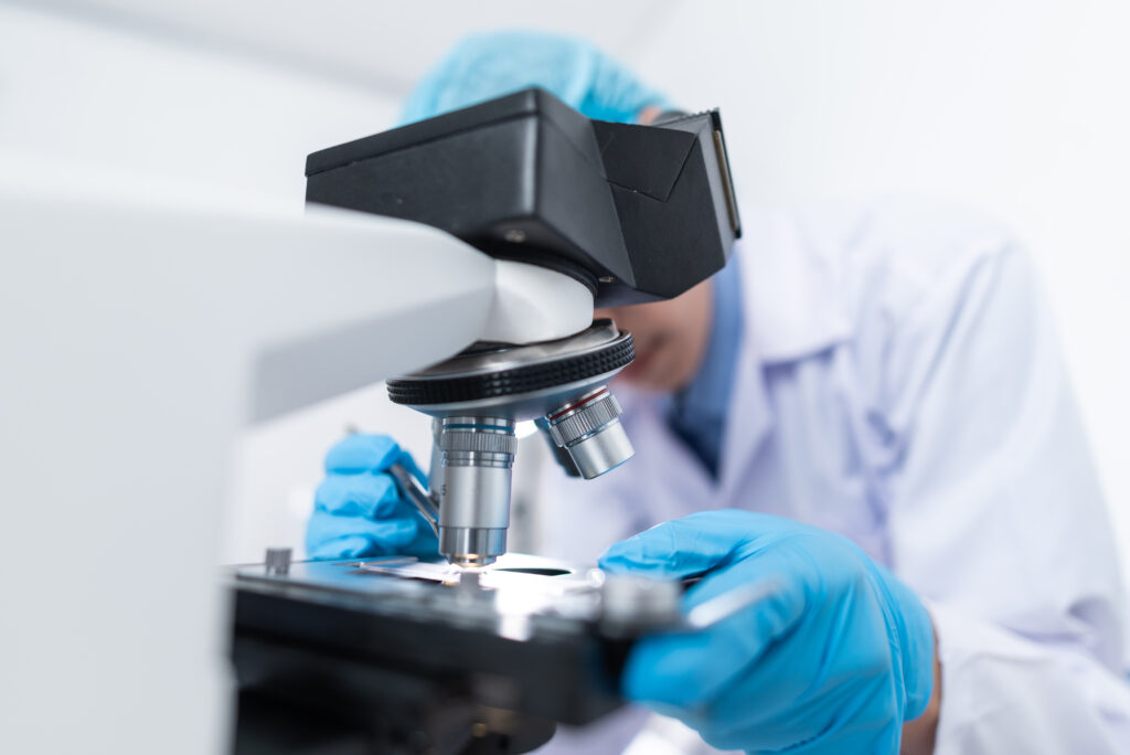 Doctors are diagnosed in the laboratory. With microscopy